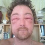 Un homme piqué par des abeilles