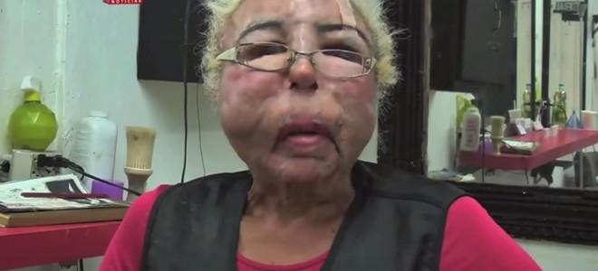 Visage défiguré après s'être injecté de l'huile pour bébé